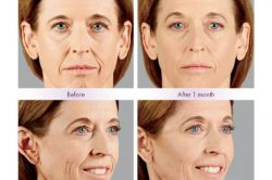 Juvederm Voluma Before-After