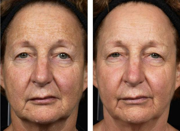 Facial resurfacing before and after charming topic