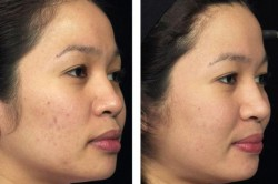 Fraxel Dual Laser Before-After