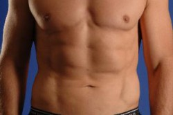 Smartlipo Laser Liposuction After