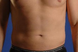 Smartlipo Laser Liposuction Before
