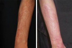 UltraPulse Encore CO2 Laser Arms Before-After