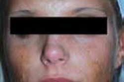 UltraPulse Encore CO2 Laser Face Scars Before