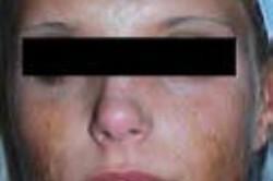 UltraPulse Encore CO2 Laser Face Scars Before