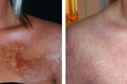 UltraPulse Encore CO2 Laser Chest Before-After