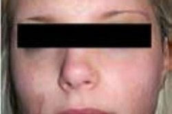 UltraPulse Encore CO2 Laser Face Scars After