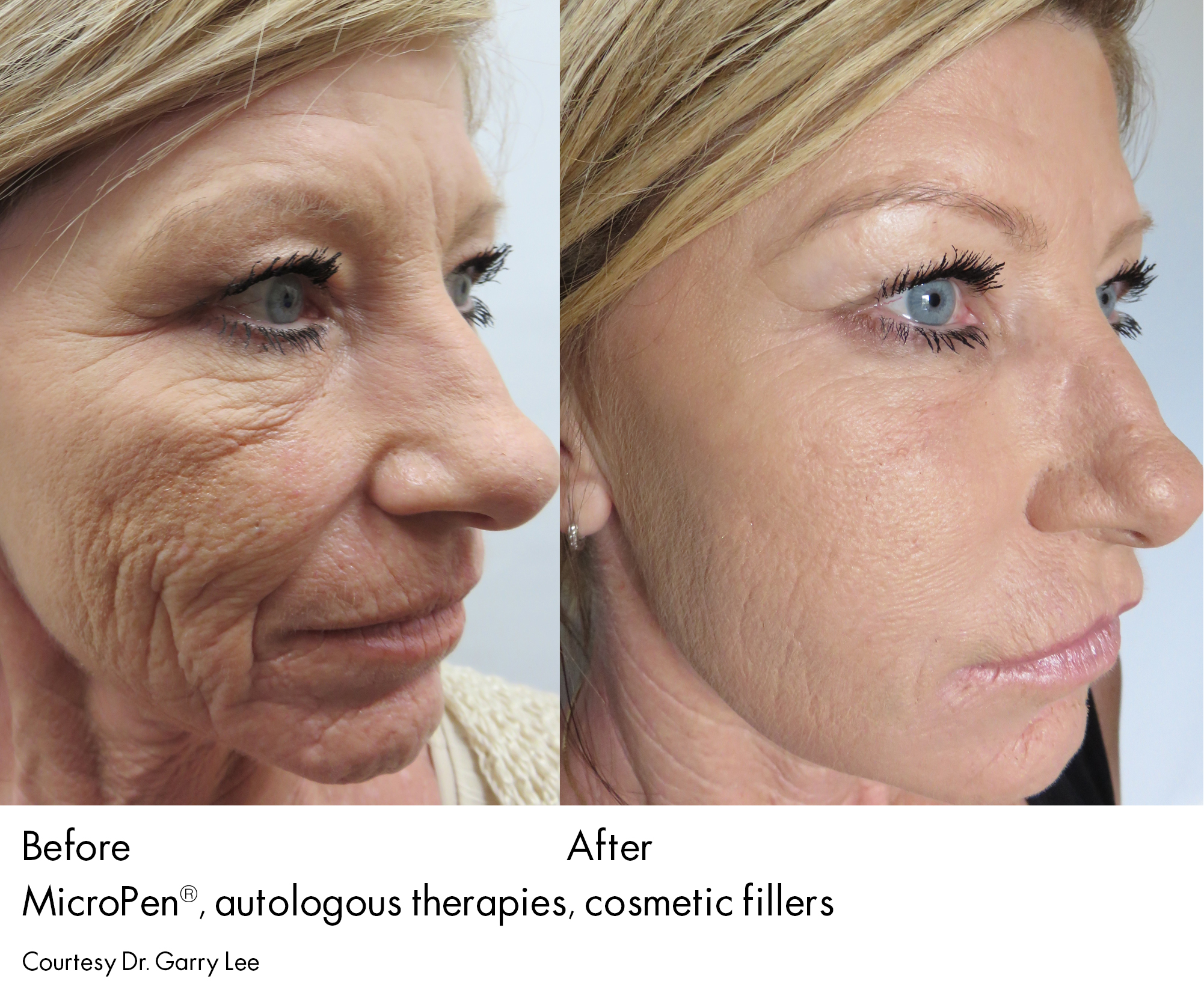 Microneedling Collagen Induction Therapy Serenity Medspa