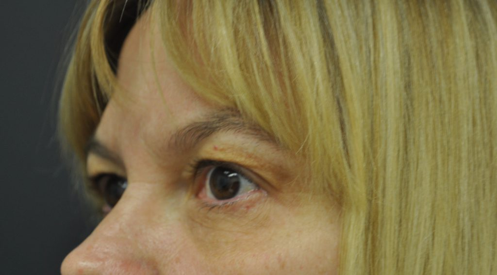 Btl Exilis Ultra Pic 009 After Eyes Female Jason Lupton Md