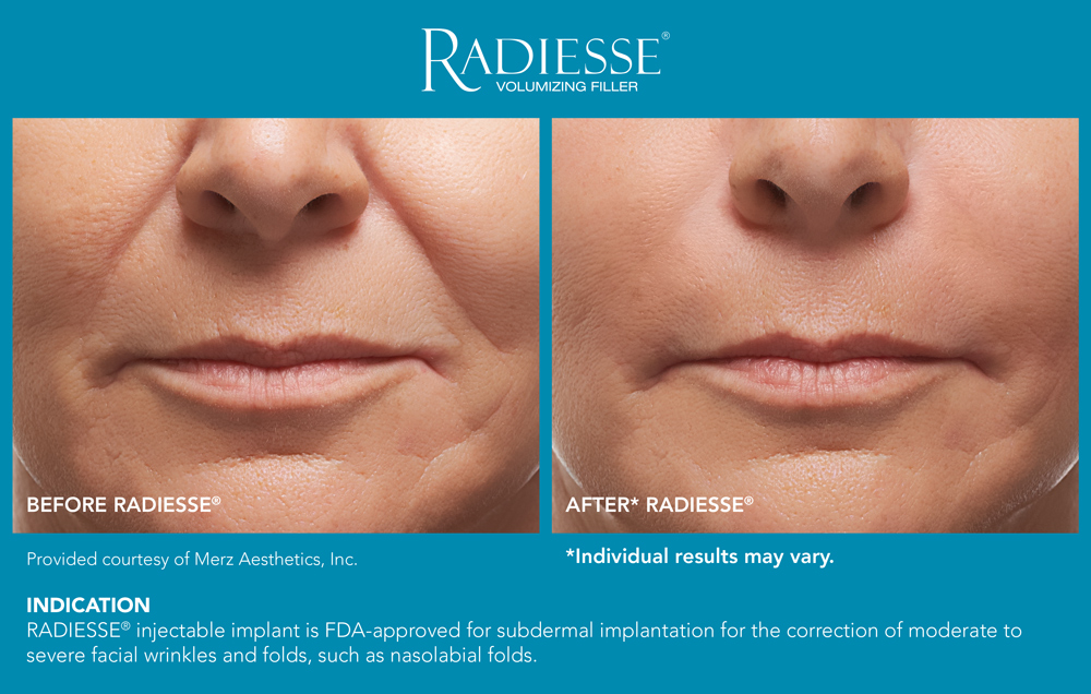 Radiesse Before After Serenity Medspa