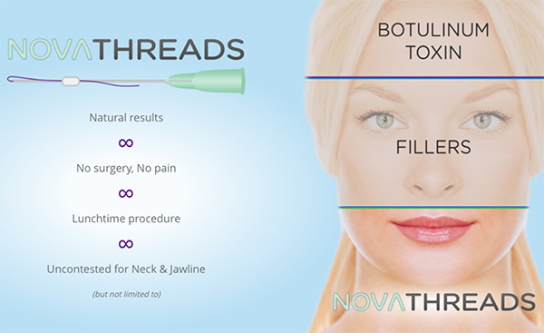 PDO Thread Lift – Nonsurgical Facelift with NovaThreads - Serenity