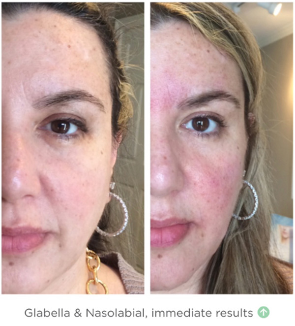 Pdo Thread Lift Nonsurgical Facelift With Novathreads Serenity