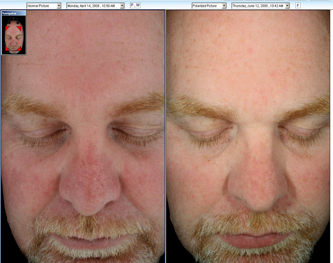Hydrafacial Md Before And After Photos Serenity Medspa