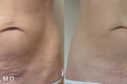 Thermitight Before After Serenity Medspa
