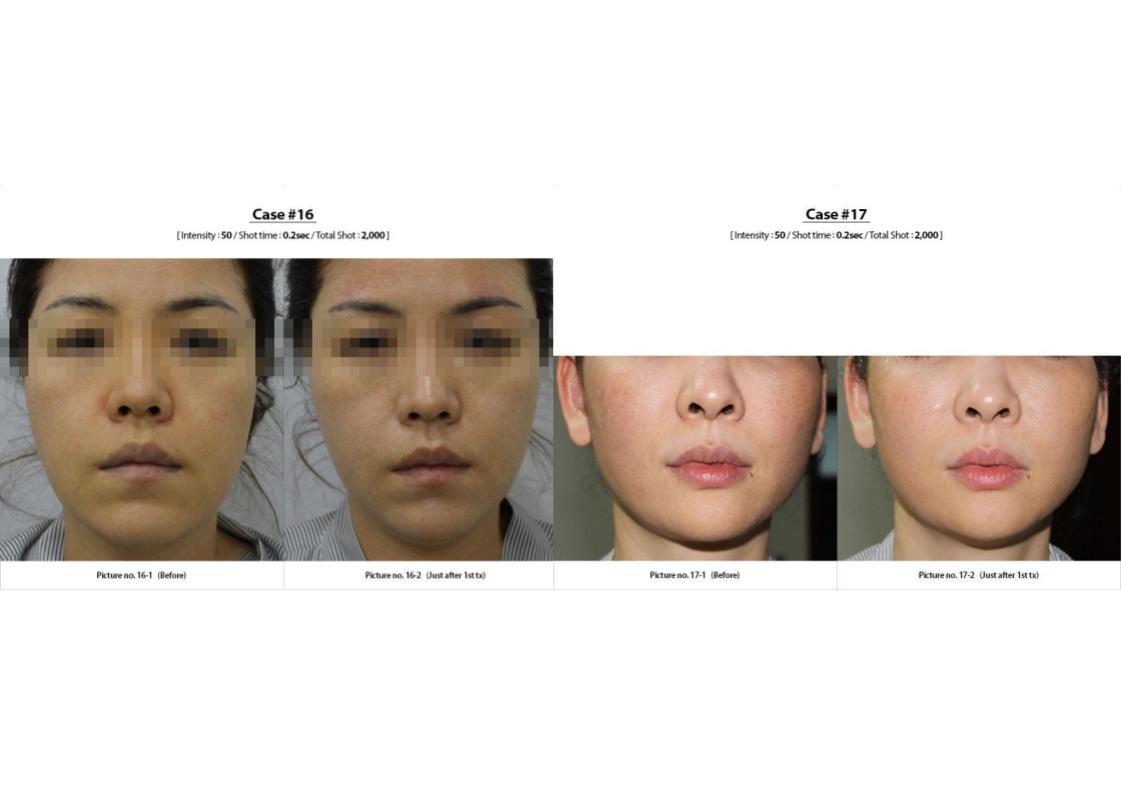 Vzet For Skin Lifting And Skin Tightening Serenity Medspa