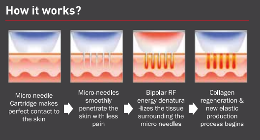Secret Rf Tighten And Rejuvenate Skin With Fractional Rf