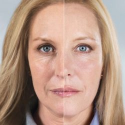 Sculptra Before-After