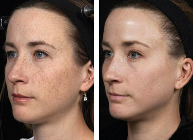 Fraxel Dual Laser Before After Serenity Medspa