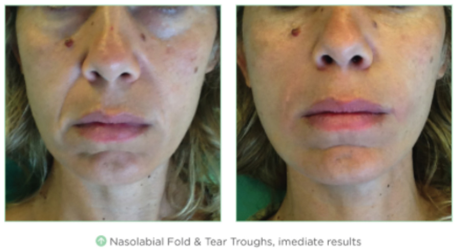 Pdo Thread Lift Nonsurgical Facelift With Novathreads