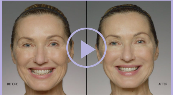 Filler 101: Which Injectable is Right for You? - Serenity MedSpa