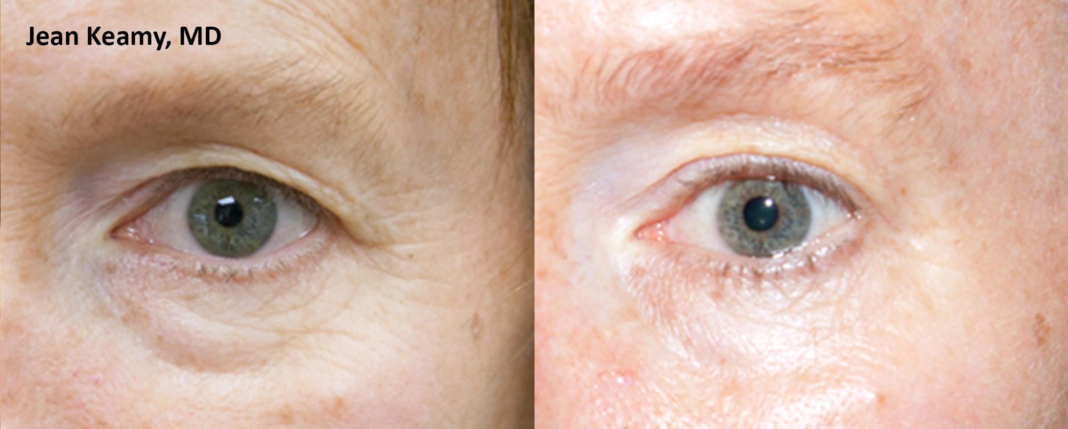 Thermismooth Before After Serenity Medspa