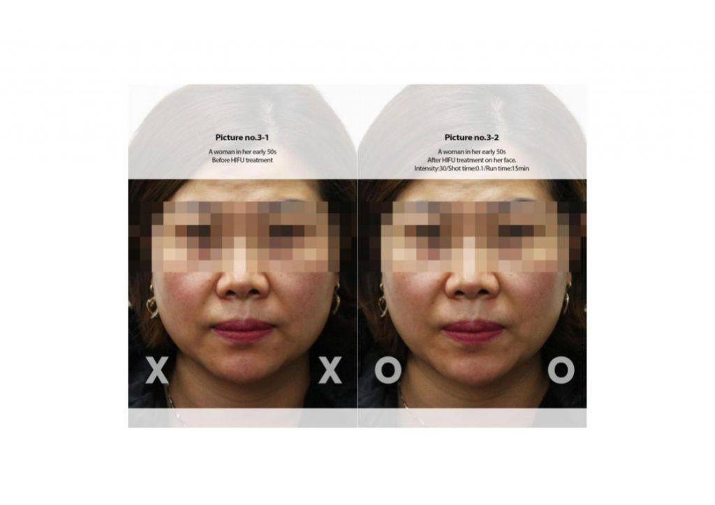 Vzet for Skin Lifting and Skin Tightening - Serenity MedSpa