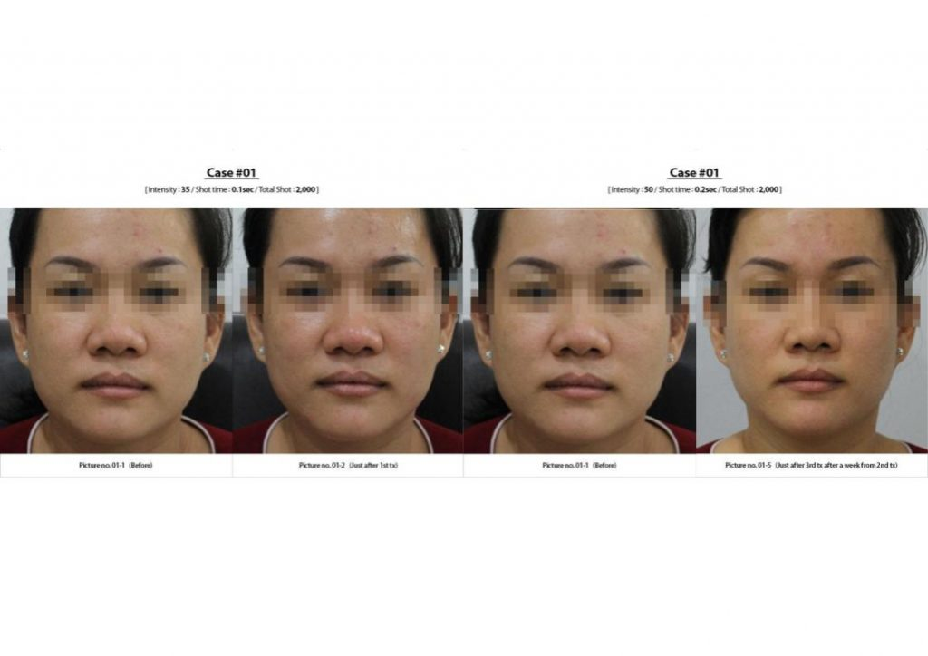 Vzet for Skin Lifting and Skin Tightening - Serenity MedSpa