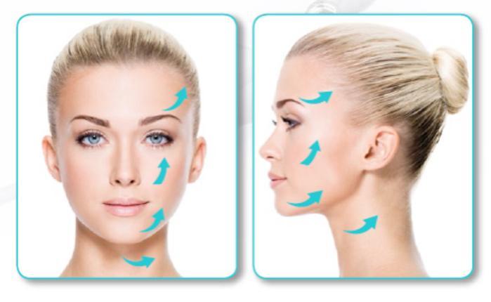 Silhouette InstaLift™ : Nonsurgical Facelift - Serenity MedSpa
